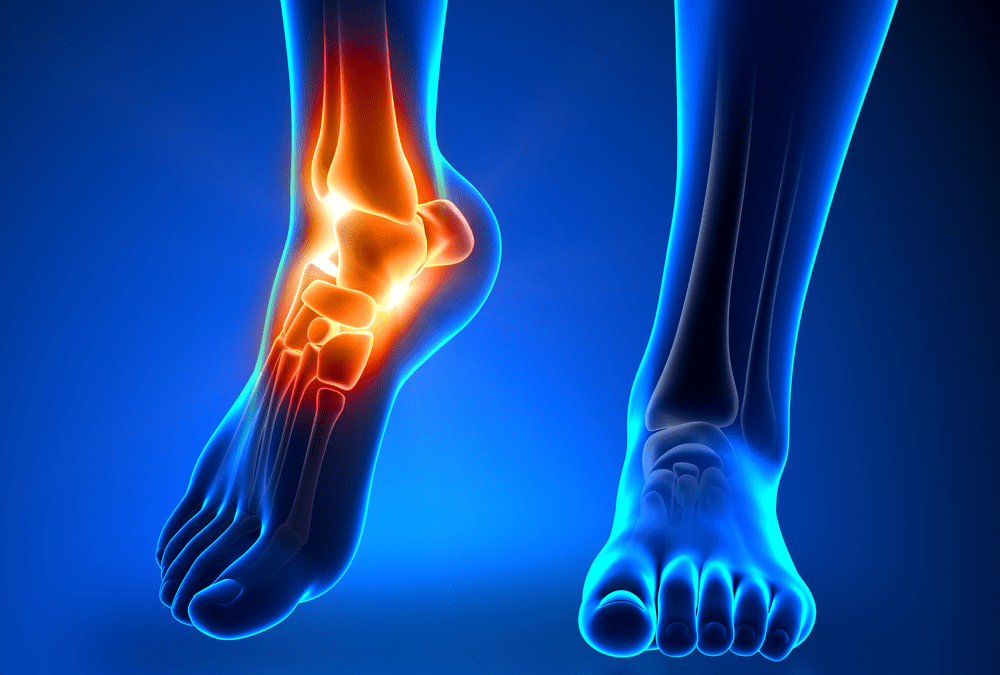 How Can You Get Rid of Ankle Pain?